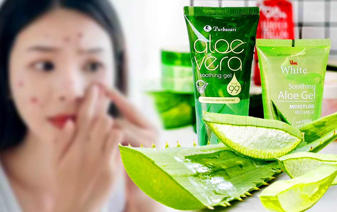 aloe vera gel for acne prone skin