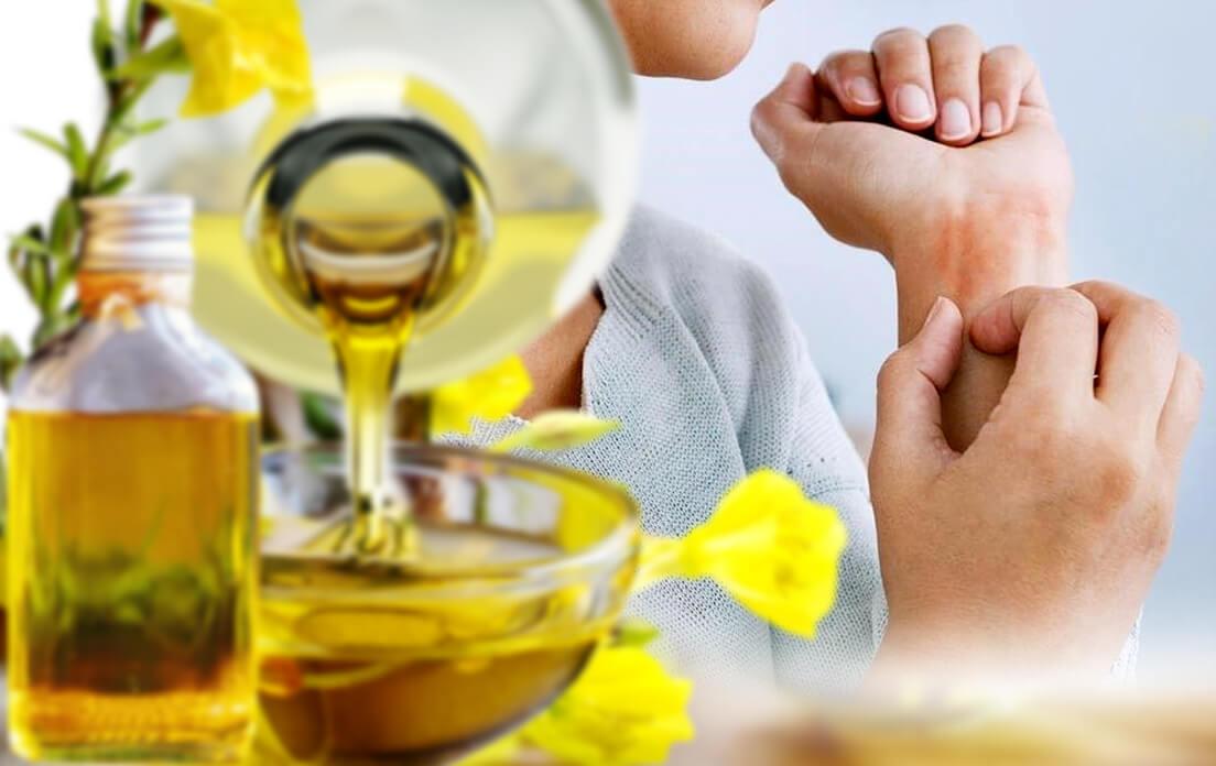 primrose oil benefits eczema