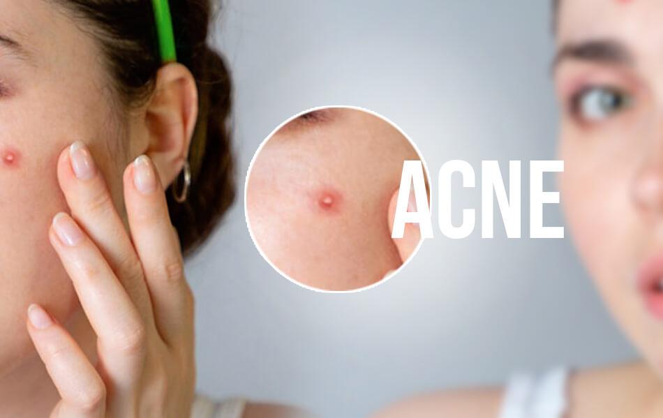 facials for acne