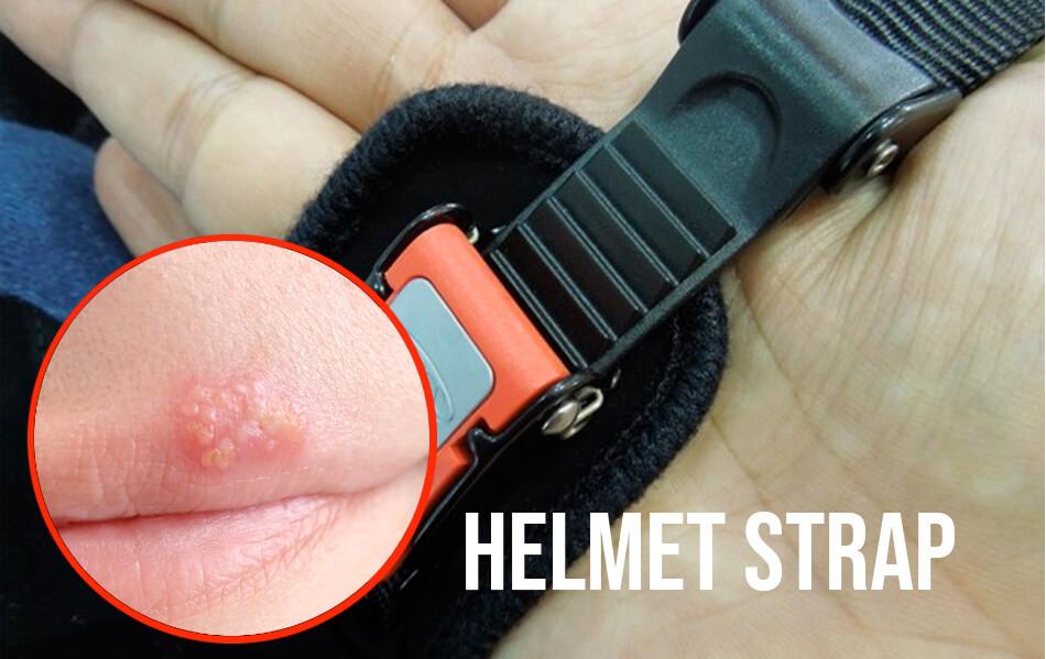 Helmet strap