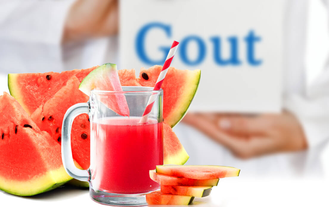 Is Watermelon Good For Gout