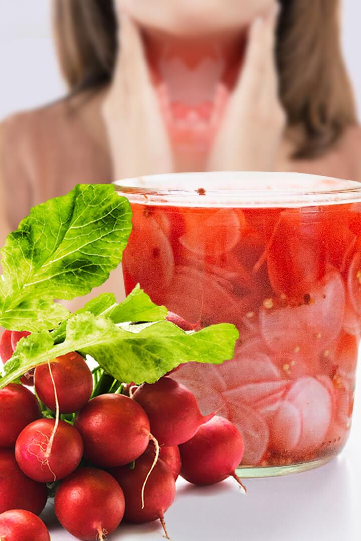 Radishes Health Benefits