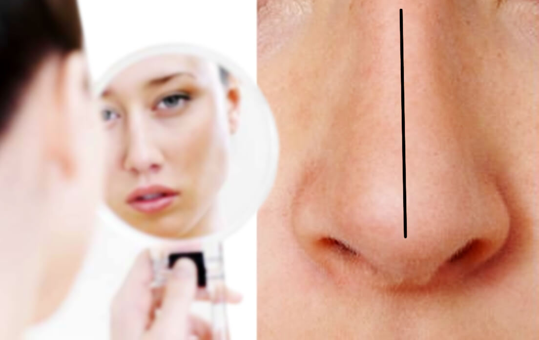 The Best Way to Straighten Your Crooked Nose Perhaps One with Septoplasty