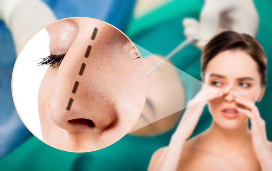 The Best Way to Straighten Your Crooked Nose, Perhaps One with Septoplasty