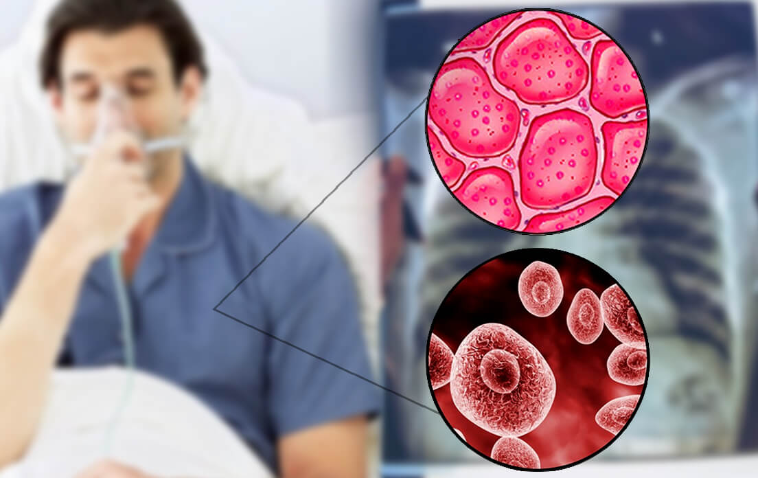 pneumonia contagious