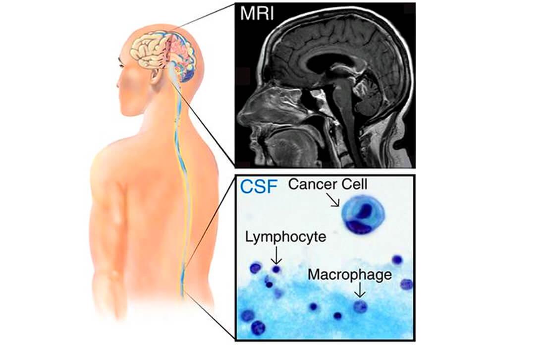 leptomeningeal disease