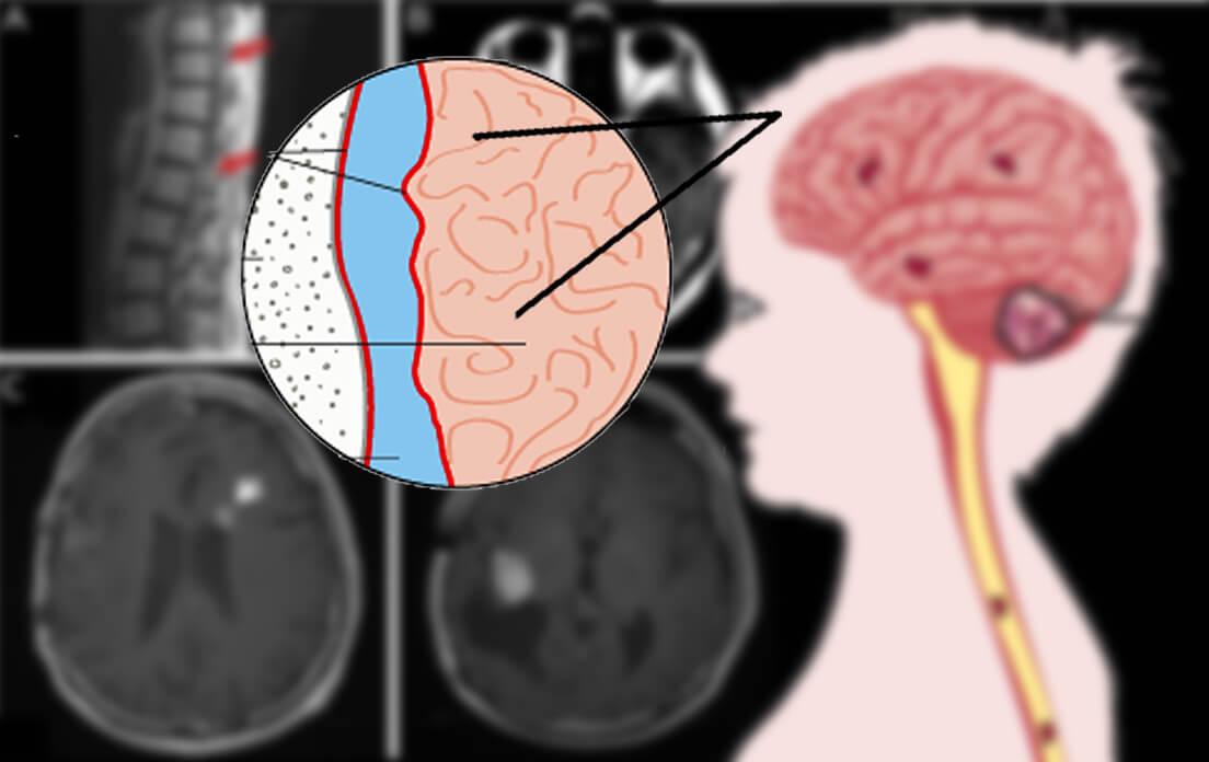 What is Leptomeningeal Disease?,