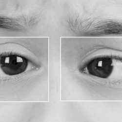 the dangers of a wandering eye, and how to fix it