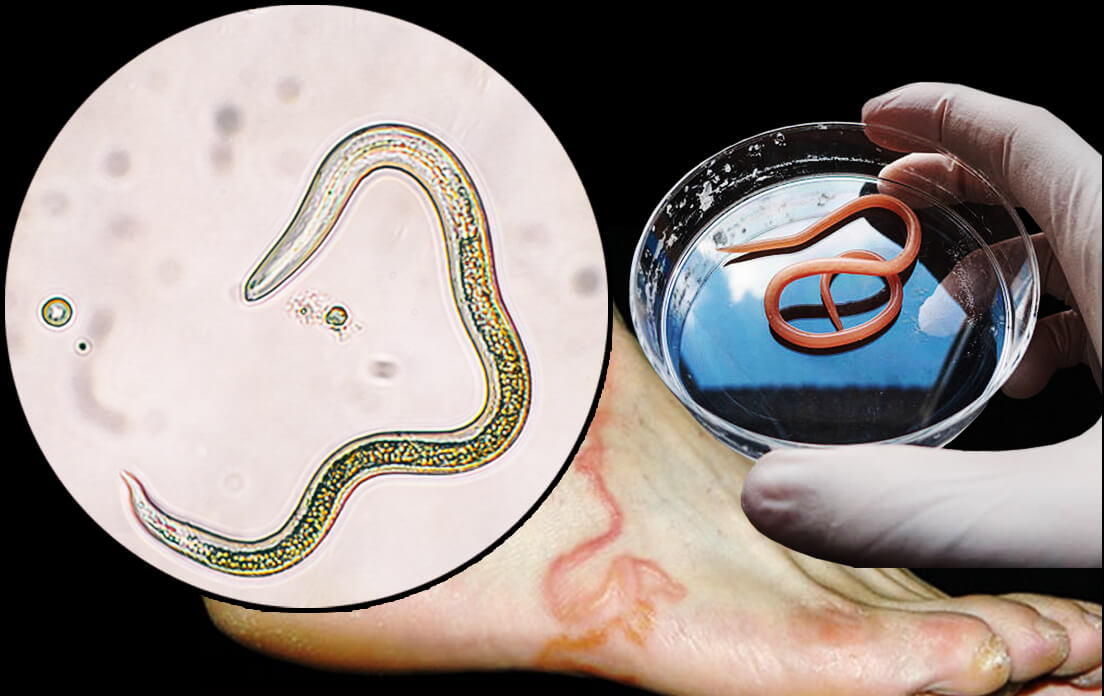 How Fast Can a Roundworm Run: OMG Unbelievable!!