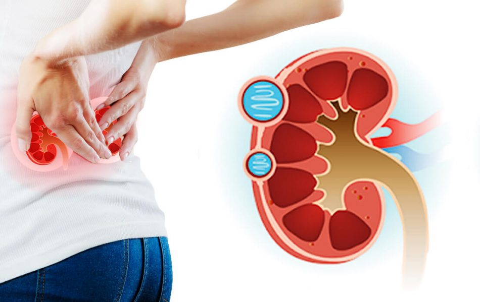 renal cysts on kidneys
