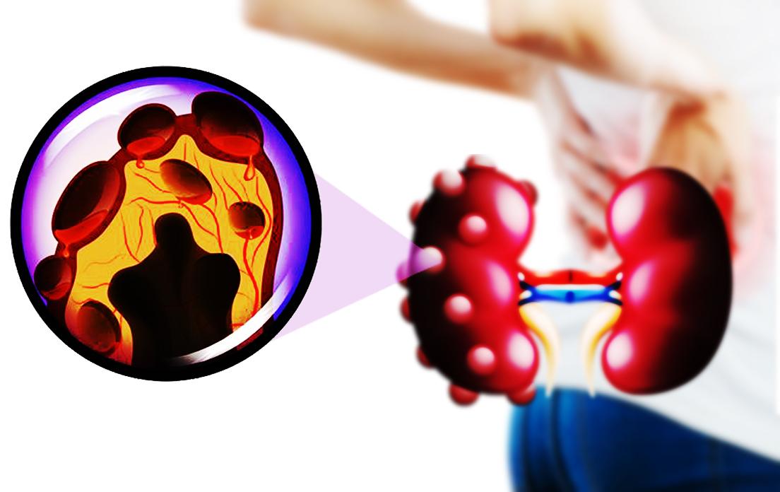 renal cysts on kidneys: renal cysts symptoms