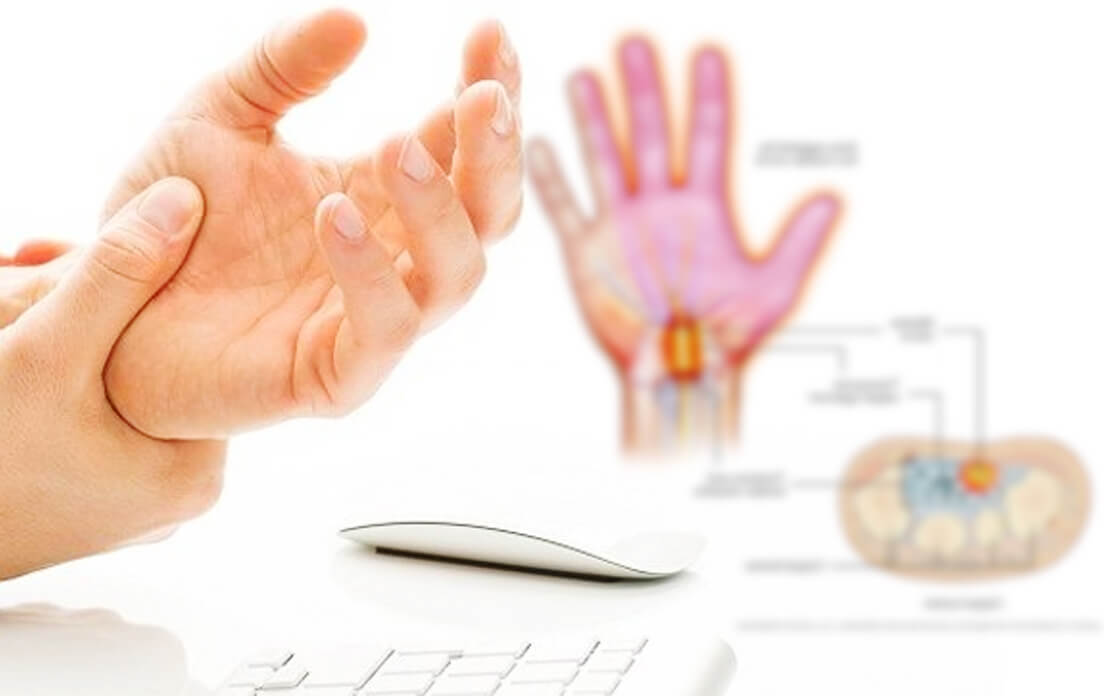 Signs of Permanent Nerve Damage: and How Signs of Healing Nerve Damage