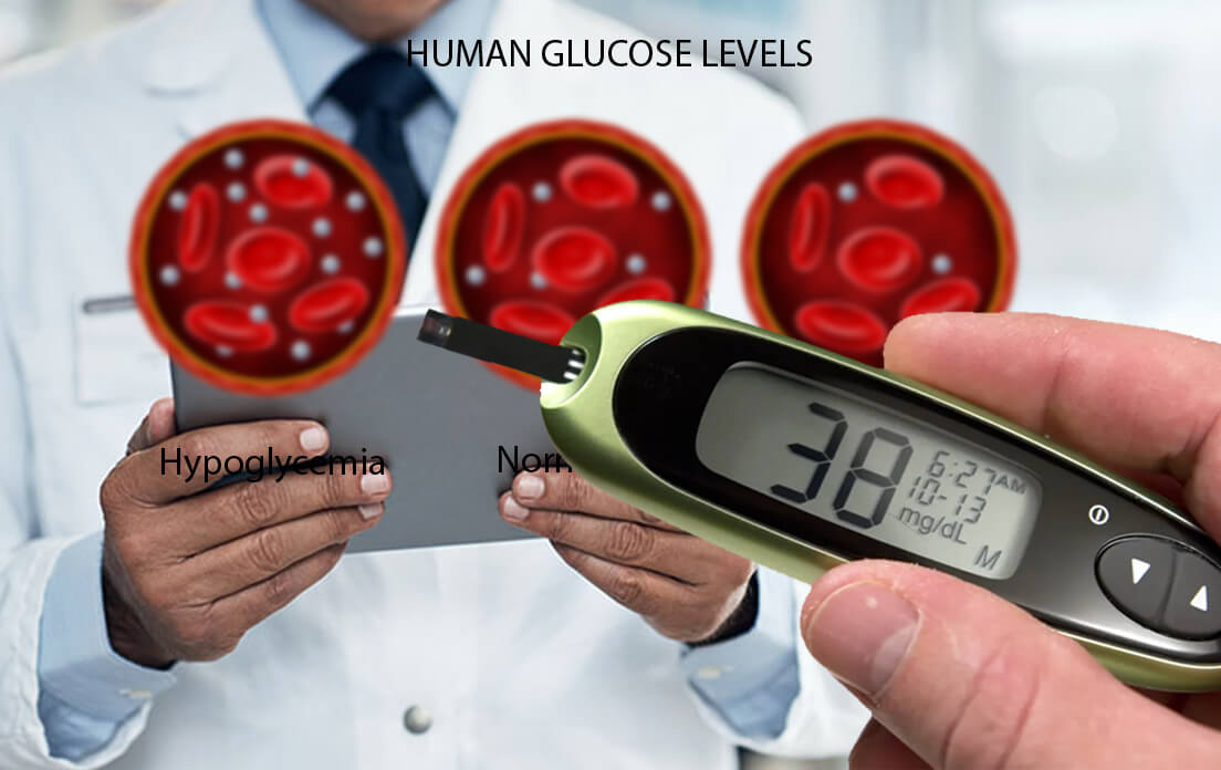 What is Dangerously Low Blood Sugar Symptoms Causes and Treatment