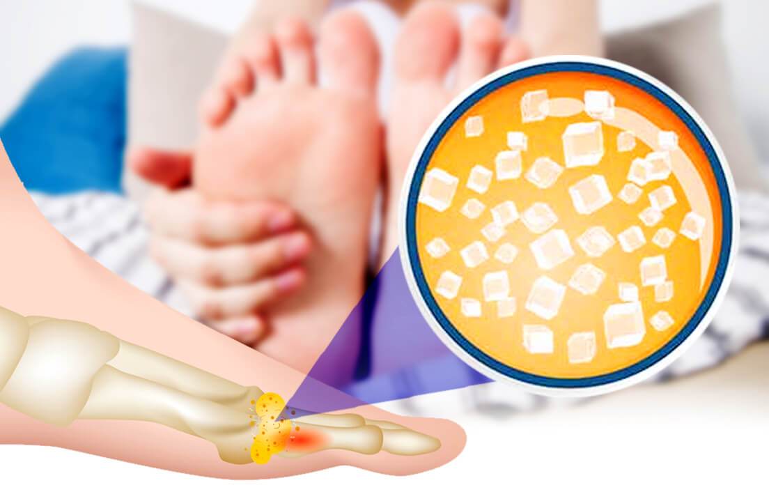symptoms of high uric acid in women, and how to reduce uric acid?