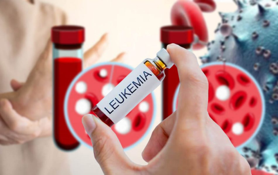 symptoms of leukemia in women Needs To Know, and What Is the Life Expectancy of a Person With Leukemia And Can it Be Cured