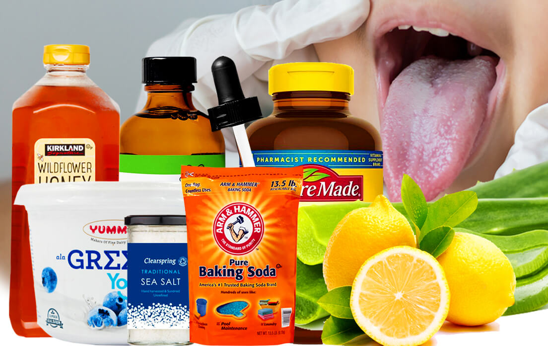home remedies for sore mouth and tongue: symptoms and diagnosis