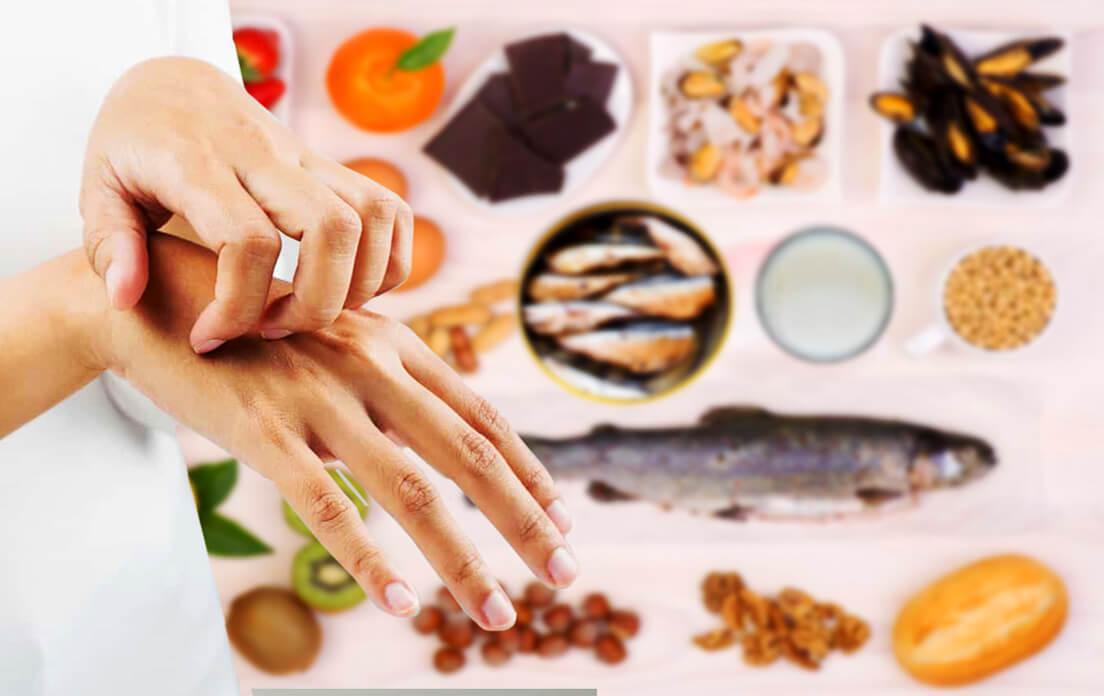 identifying skin rashes in adults