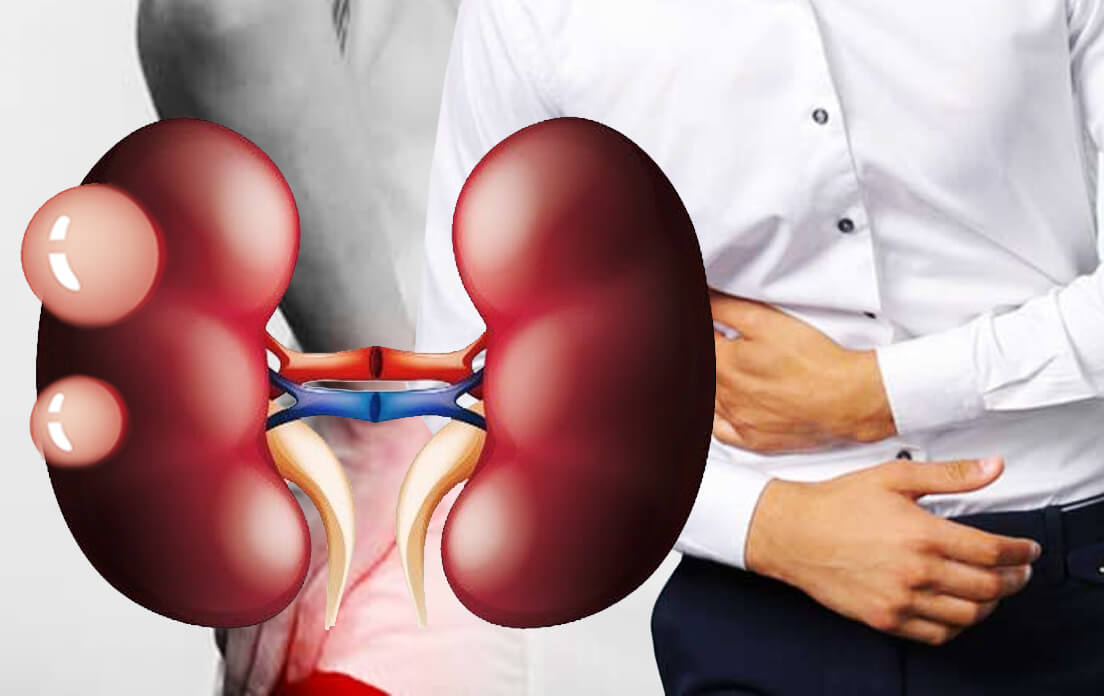 Kidney Cysts in Men and Women: Diagnosis and Treatment
