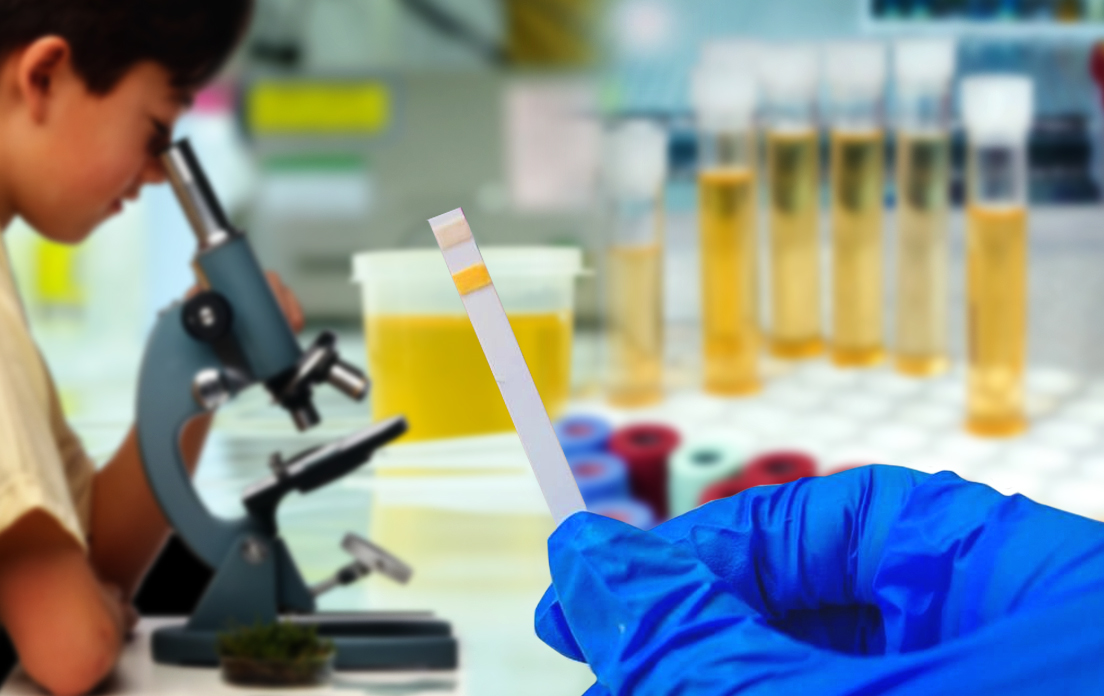 What Does Protein In Urine Mean: How to Tests, Symptoms, Causes and Treatment