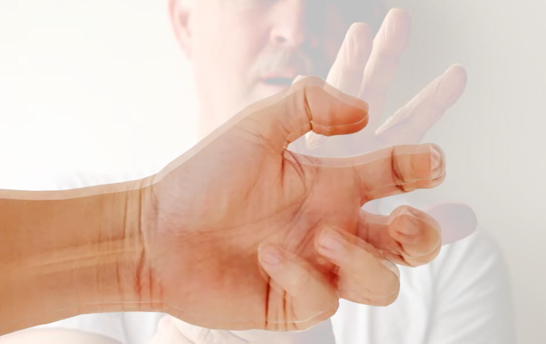 Dystonia Definition: Symptoms, Type, Causes and How To Treat It