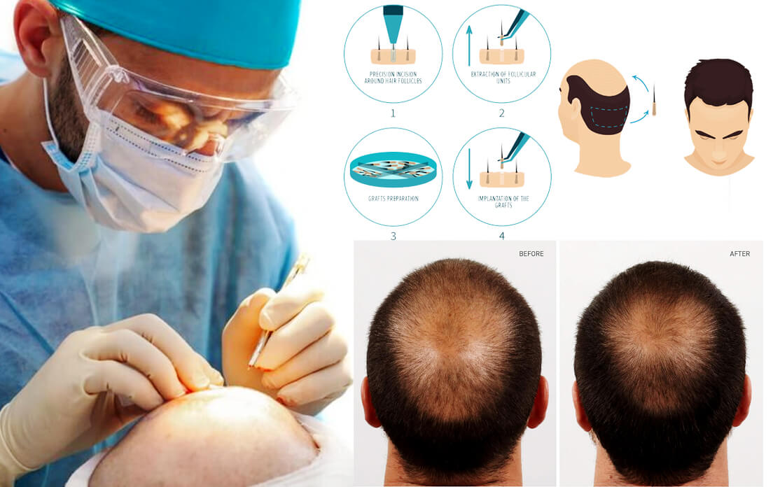 Hair Replacement: Does is Work? and How Much Average Cost and Side Effects
