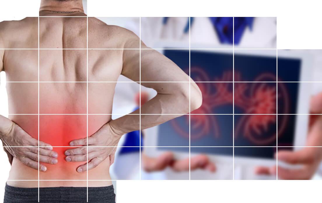 kidney stones symptoms