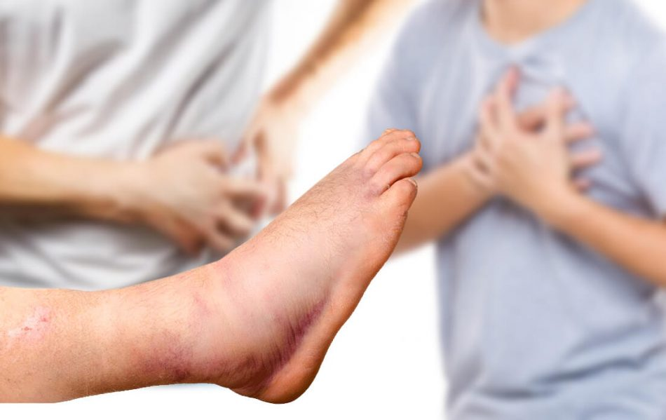 left foot and ankle swelling