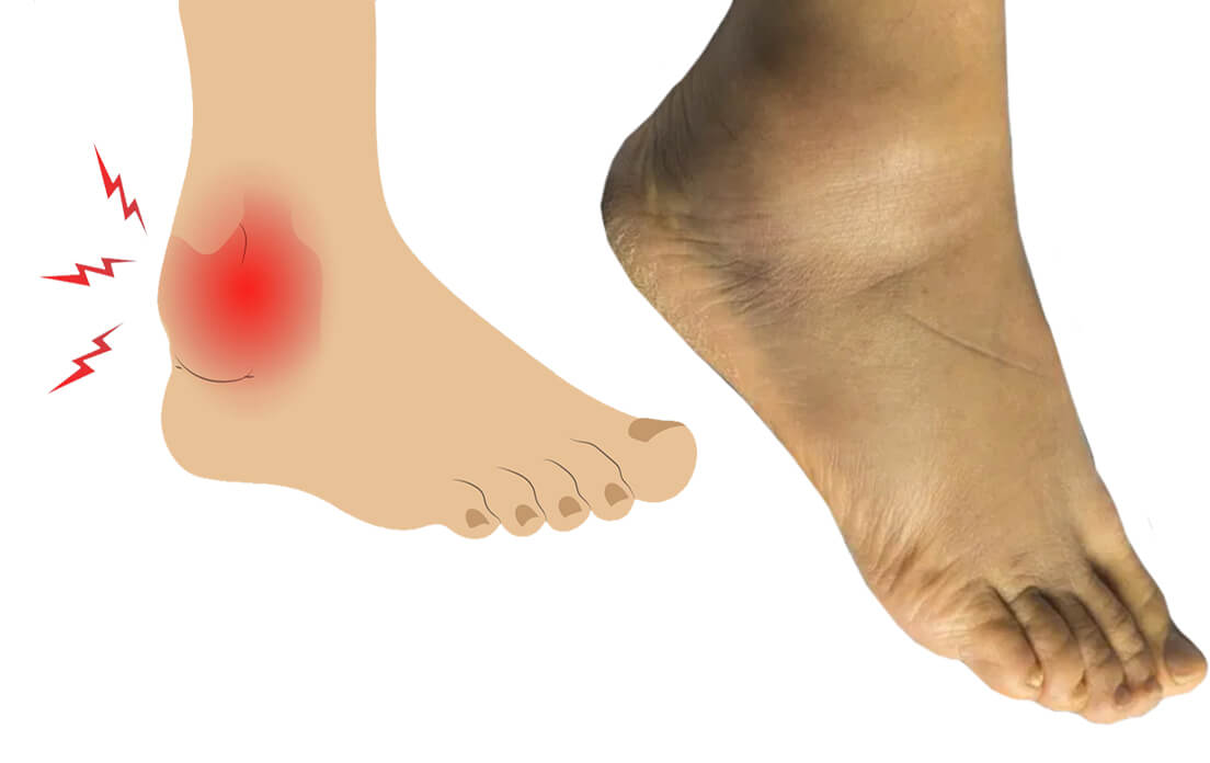 Left Foot and Ankle Swelling: Symptoms, Causes, and Best Medication