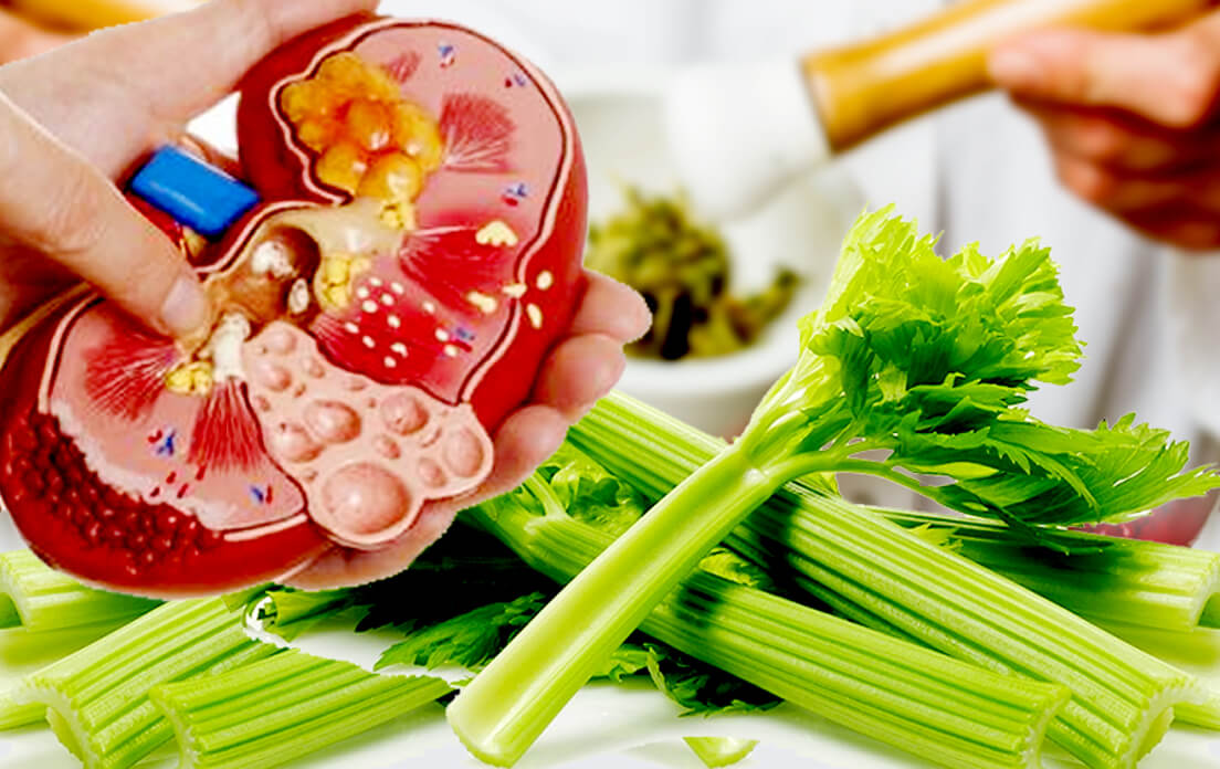 Natural Cures For Kidney Cysts: Best Treatments From Home