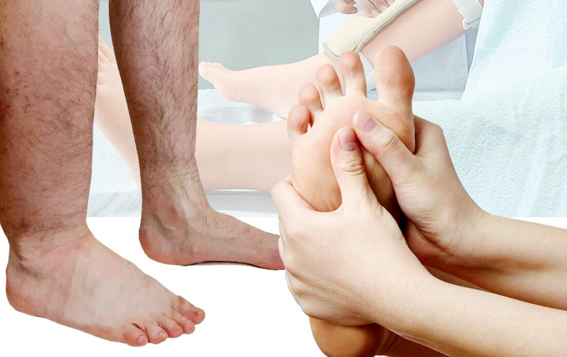 Pedal Edema: Definition, Diagnosis, Symptoms, Causes and Treatment