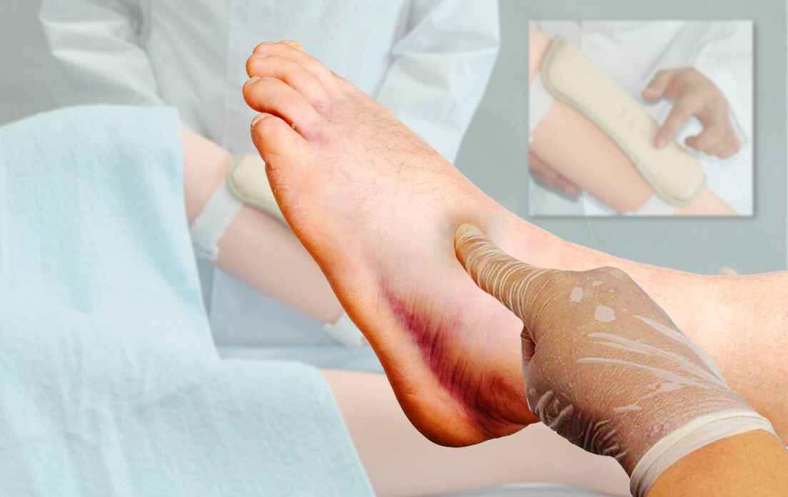 Pitting Edema: What is it Symptoms and Causes (How to Treatment, Scale, Grading, Diagnosis)
