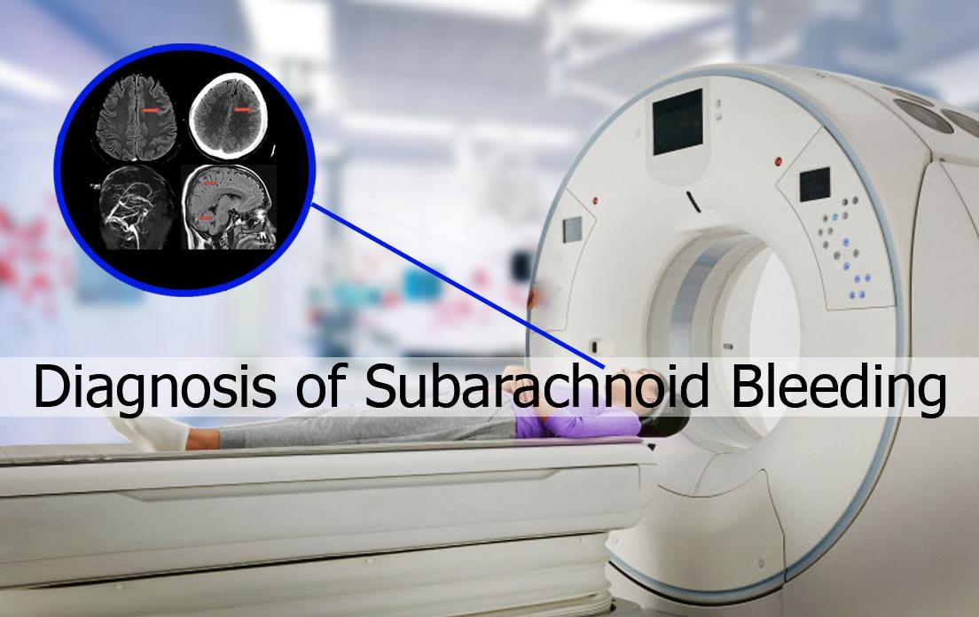 Subarachnoid Hemorrhage: What is Subarachnoid Hemorrhage (SAH)? Symptoms, Diagnosis and Causes