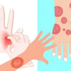 best treatment for tinea corporis