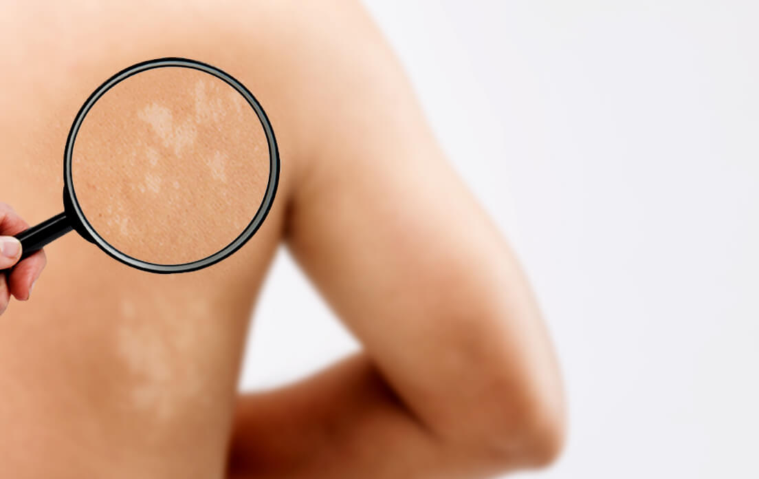 Tinea Versicolor: (What is tinea versicolor?) Is it Dangerous? What's the Difference With Ringworm