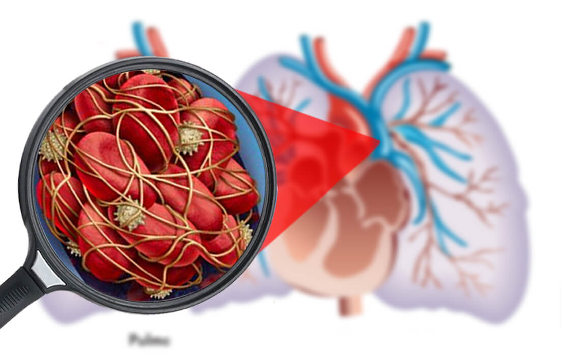 How To Prevent Pulmonary Embolism: Symptoms, Diagnosis, Causes and Treatment