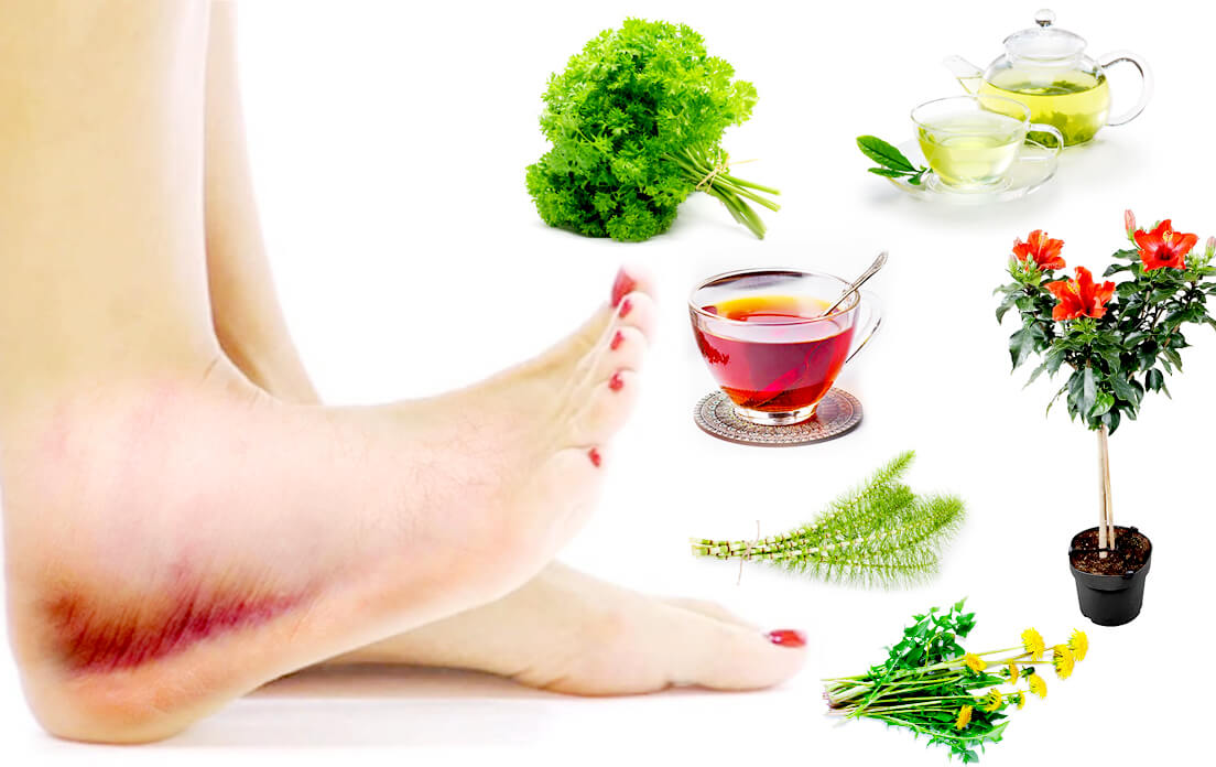 swollen feet and ankles remedy