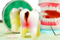 what does a small cavity look like